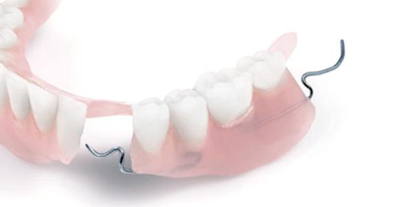 Partial-denture-curved-570x300